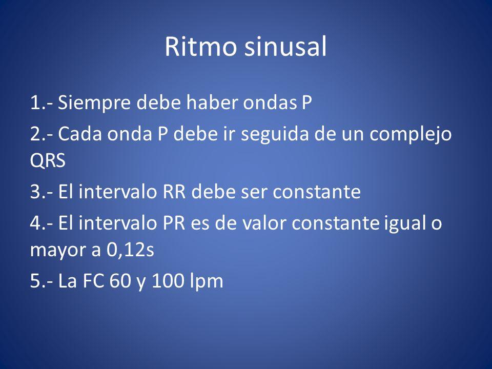 Ritmo sinusal 1.- Siempre debe haber ondas P 2.- Cada onda P debe ir seguida de un complejo QRS 3.- El intervalo RR debe ser constante 4.- El interval