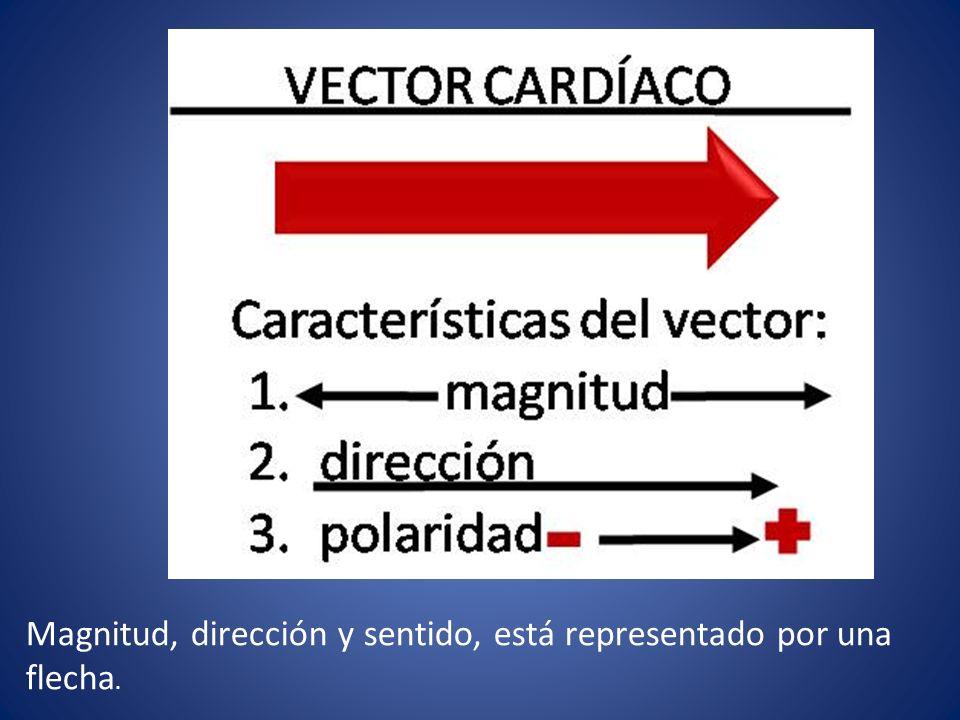 Complejo QRS Despolarización ventricular Duración 0.6 a 0.10 s Positivo, negativo o bifásico Onda es < de 5mm nombran LMin q, r o s Onda es > 5mm nombran LMay Q, R o S Signo de Chapman Signo de Cabrera