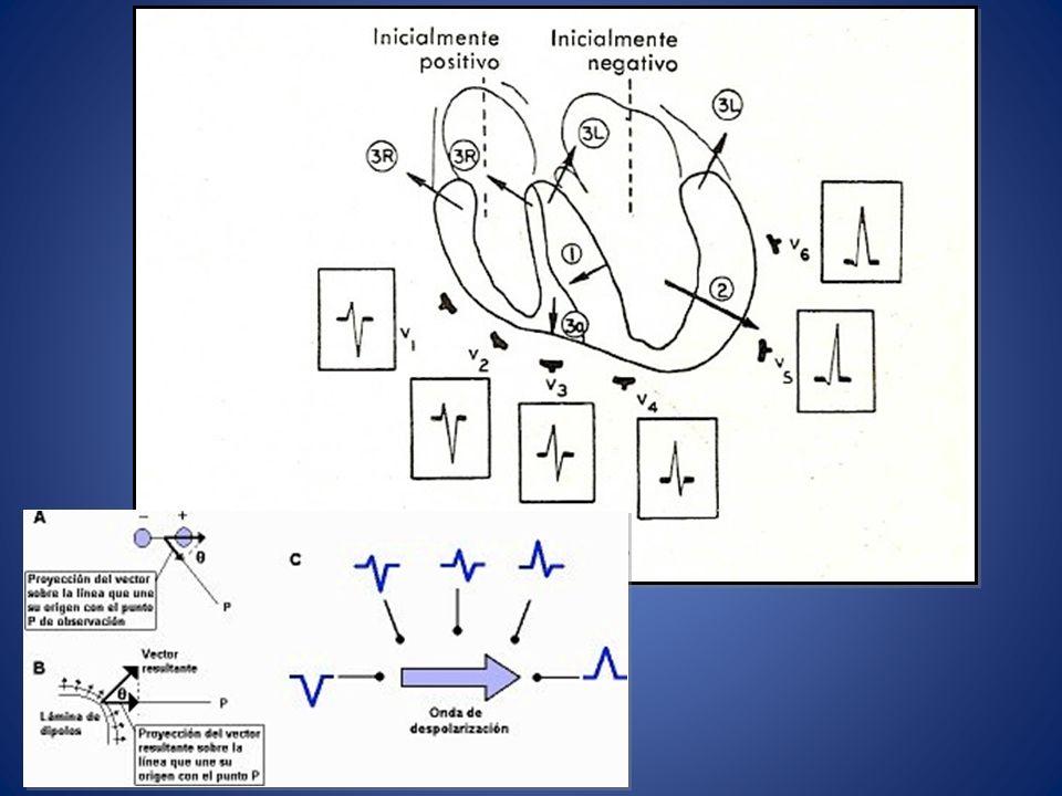 Patológico IDENTIFICAR Isquemia Hipertrofias Bloqueos SOLICITAR electrocardiogramas previos para su comparación