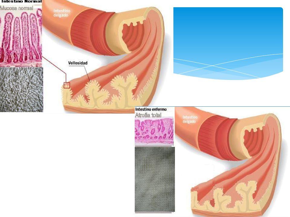 Modificados por Rostami et al Lesiones infiltrativas e infiltrativo/hiperplásicas Criterios de Marsh Sin alteraciones Linfocitosis intraepitelial Criptas alargadas Aumento de linfocitos Estructura vellositaria preservada Lesiones destructivas