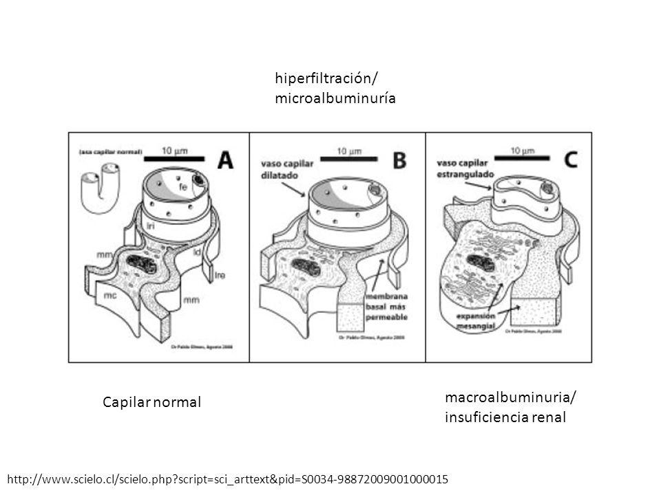hiperfiltración/ microalbuminuría macroalbuminuria/ insuficiencia renal Capilar normal http://www.scielo.cl/scielo.php?script=sci_arttext&pid=S0034-98