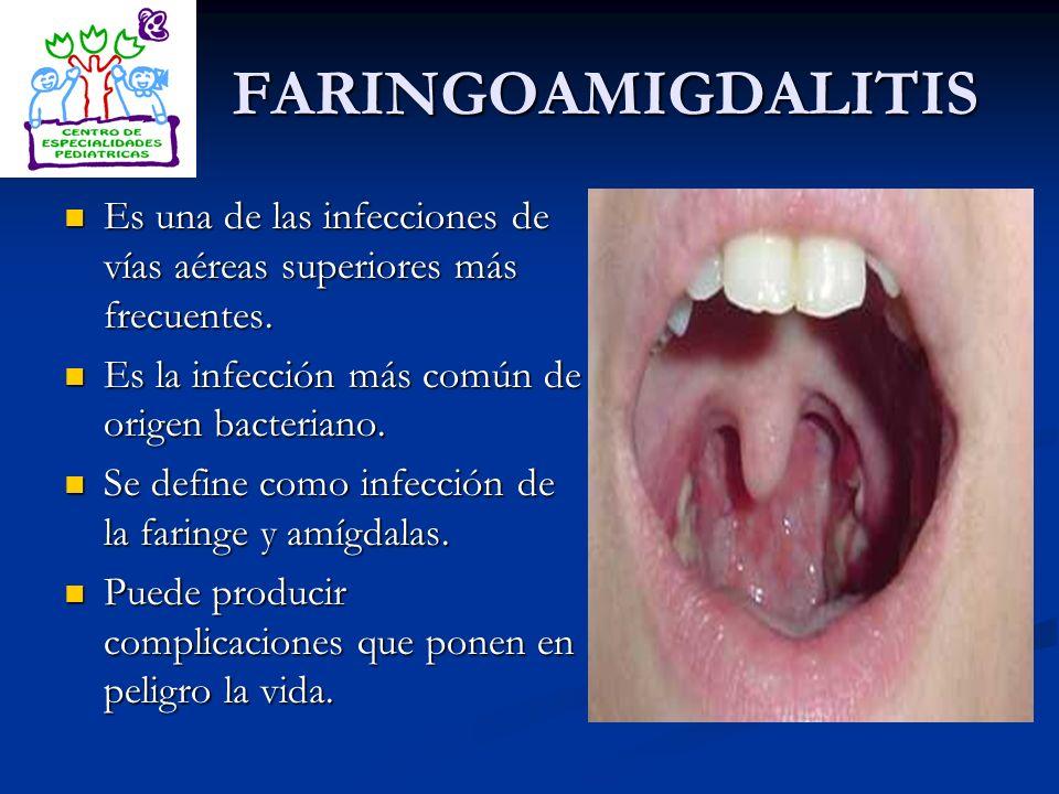 FARINGOAMIGDALITIS Es una de las infecciones de vías aéreas superiores más frecuentes. Es una de las infecciones de vías aéreas superiores más frecuen