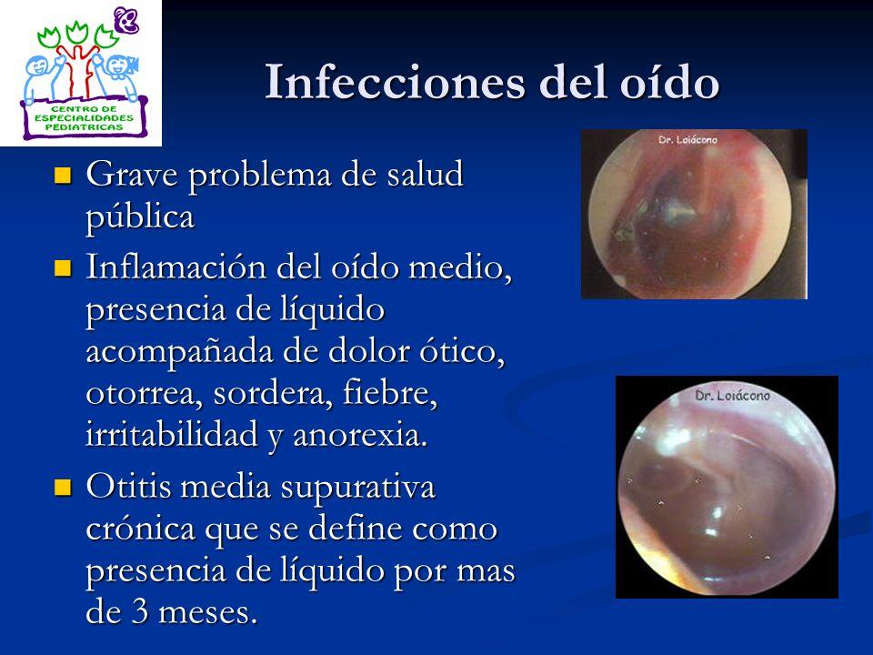 Infecciones del oído Grave problema de salud pública Grave problema de salud pública Inflamación del oído medio, presencia de líquido acompañada de do