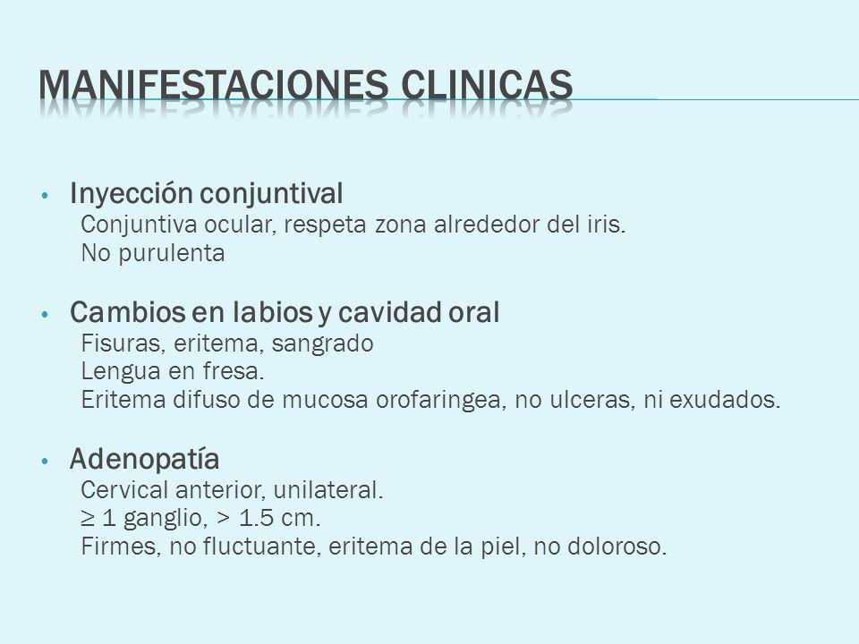 Inyección conjuntival Conjuntiva ocular, respeta zona alrededor del iris. No purulenta Cambios en labios y cavidad oral Fisuras, eritema, sangrado Len