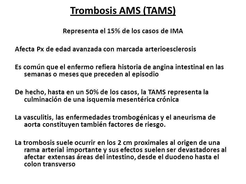Trombosis AMS (TAMS) Representa el 15% de los casos de IMA Afecta Px de edad avanzada con marcada arterioesclerosis Es común que el enfermo refiera hi