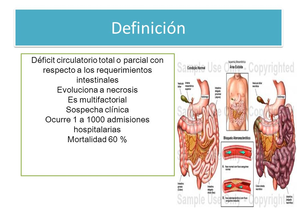 Definición Déficit circulatorio total o parcial con respecto a los requerimientos intestinales Evoluciona a necrosis Es multifactorial Sospecha clínic