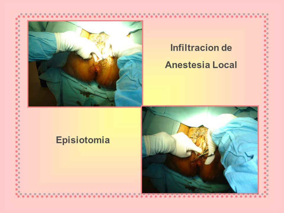 Infiltracion de Anestesia Local Episiotomia