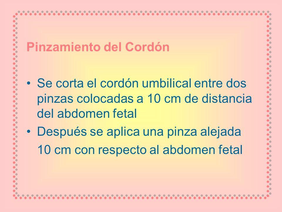 Pinzamiento del Cordón Se corta el cordón umbilical entre dos pinzas colocadas a 10 cm de distancia del abdomen fetal Después se aplica una pinza alej