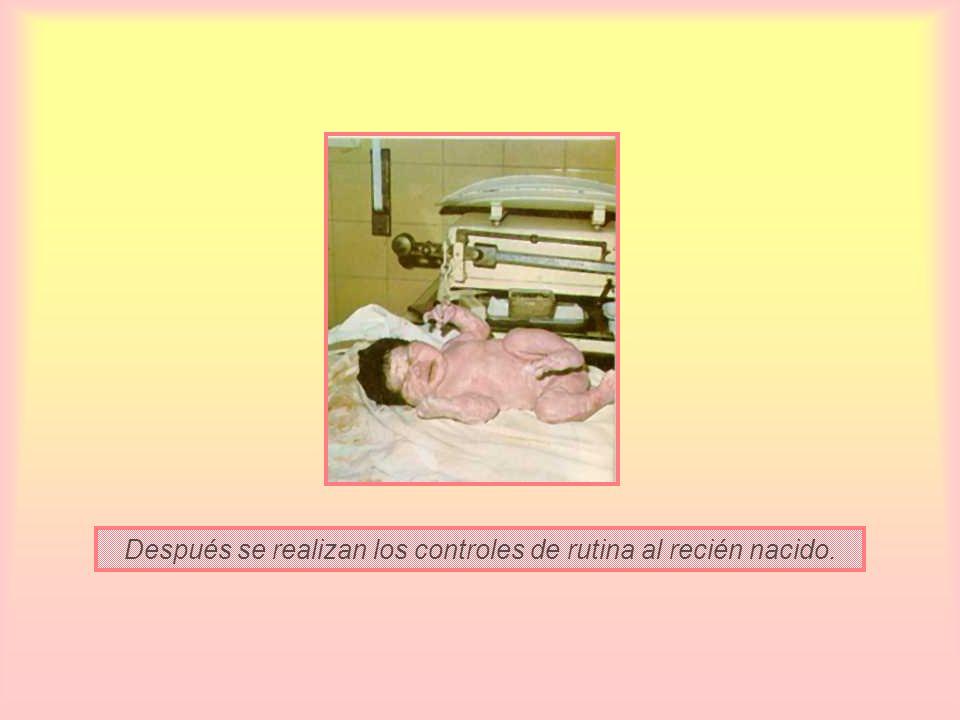 Después se realizan los controles de rutina al recién nacido.