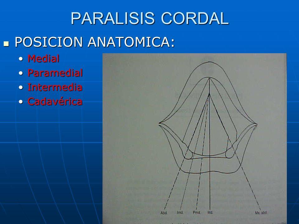 PARALISIS CORDAL POSICION ANATOMICA: POSICION ANATOMICA: MedialMedial ParamedialParamedial IntermediaIntermedia CadavéricaCadavérica
