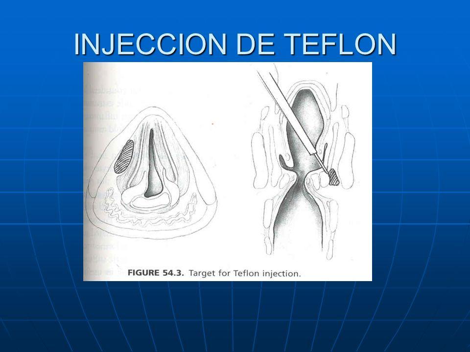 INJECCION DE TEFLON
