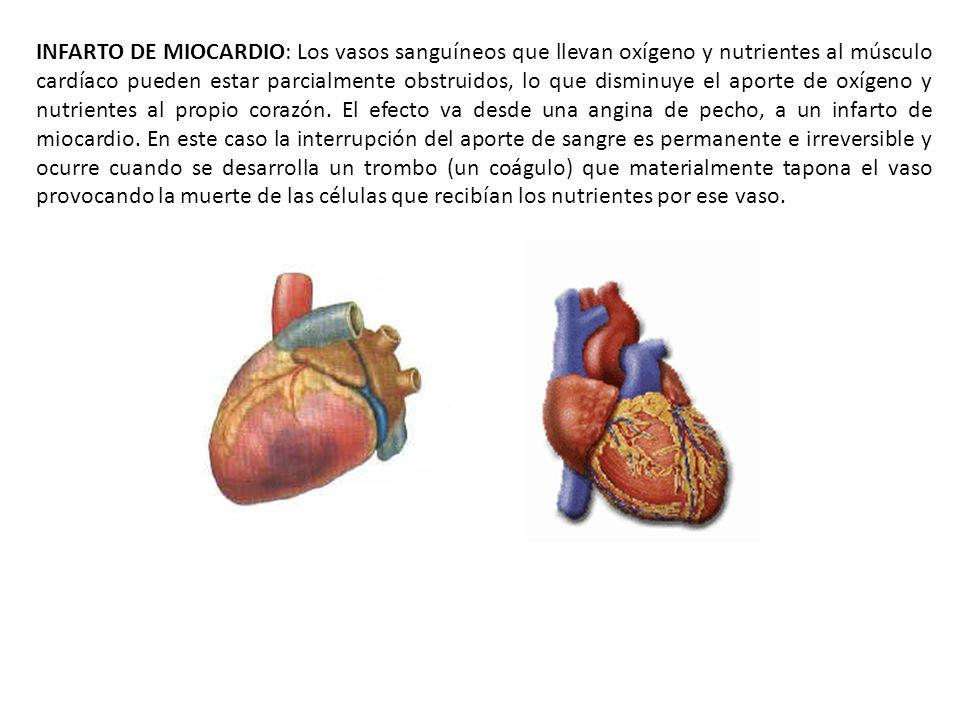 INFARTO DE MIOCARDIO: Los vasos sanguíneos que llevan oxígeno y nutrientes al músculo cardíaco pueden estar parcialmente obstruidos, lo que disminuye