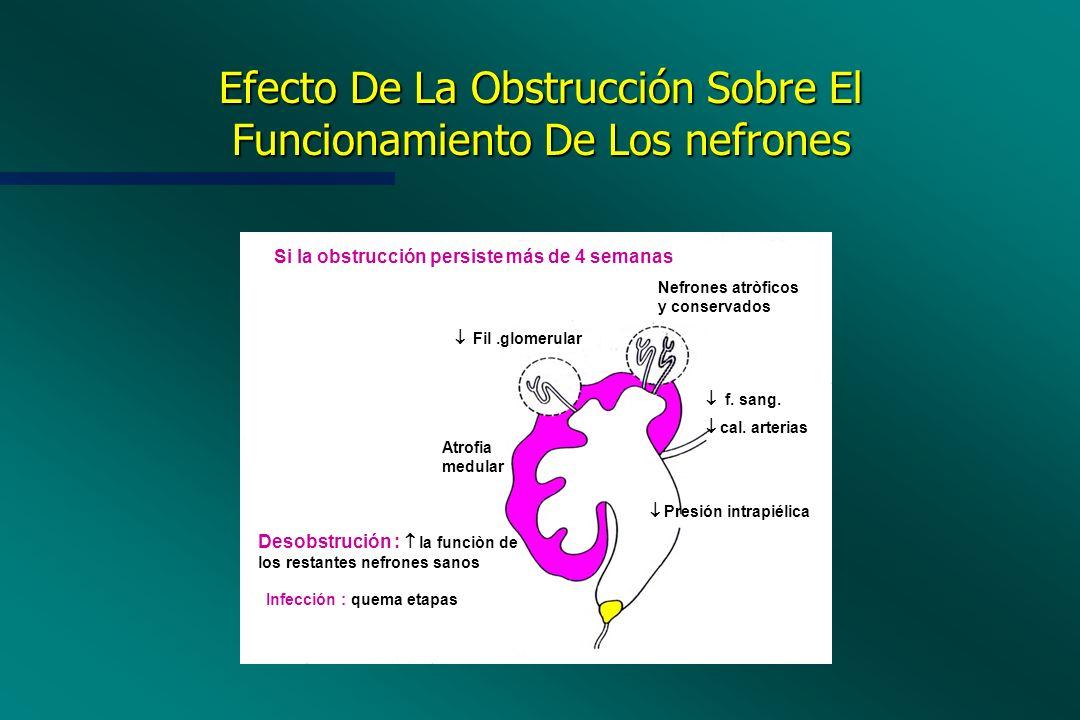 Efecto De La Obstrucción Sobre El Funcionamiento De Los nefrones Presión intrapiélica f. sang. cal. arterias Nefrones atròficos y conservados Fil.glom