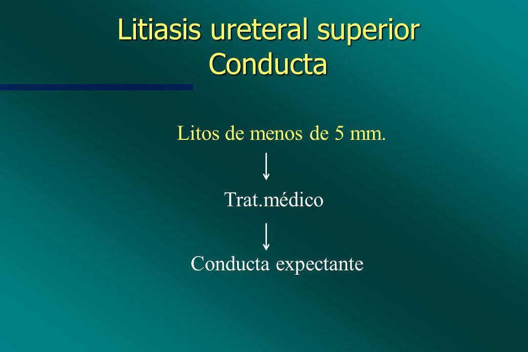 Litiasis ureteral superior Conducta Litos de menos de 5 mm. Trat.médico Conducta expectante