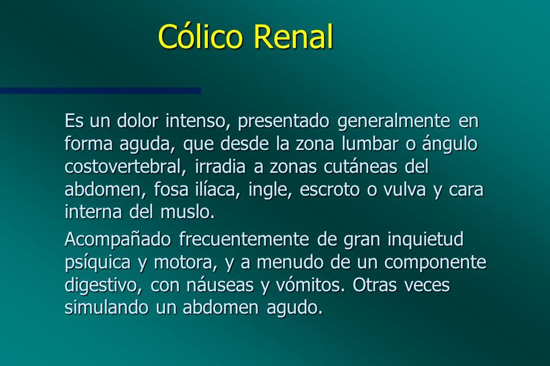 Cólico Renal Es un dolor intenso, presentado generalmente en forma aguda, que desde la zona lumbar o ángulo costovertebral, irradia a zonas cutáneas d