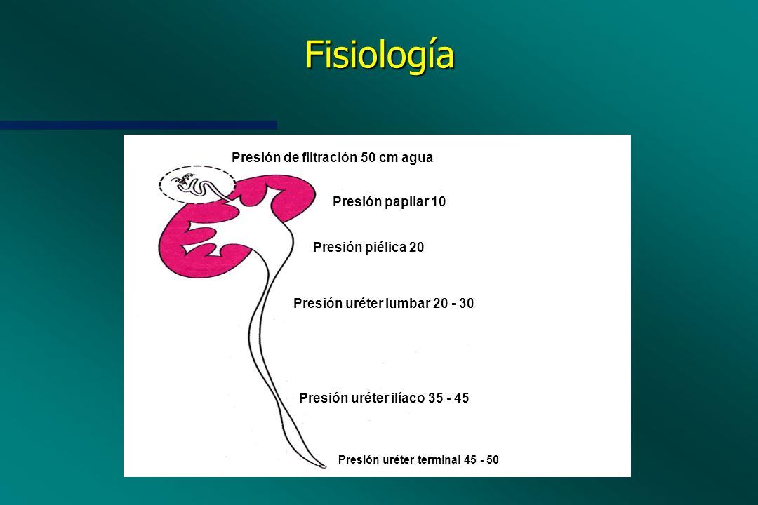 Fisiología Presión de filtración 50 cm agua Presión papilar 10 Presión piélica 20 Presión uréter lumbar 20 - 30 Presión uréter ilíaco 35 - 45 Presión