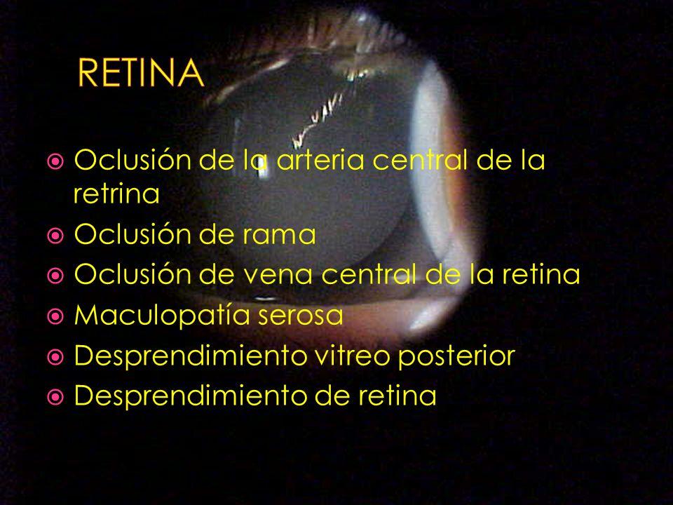 Oclusión de la arteria central de la retrina Oclusión de rama Oclusión de vena central de la retina Maculopatía serosa Desprendimiento vitreo posterio