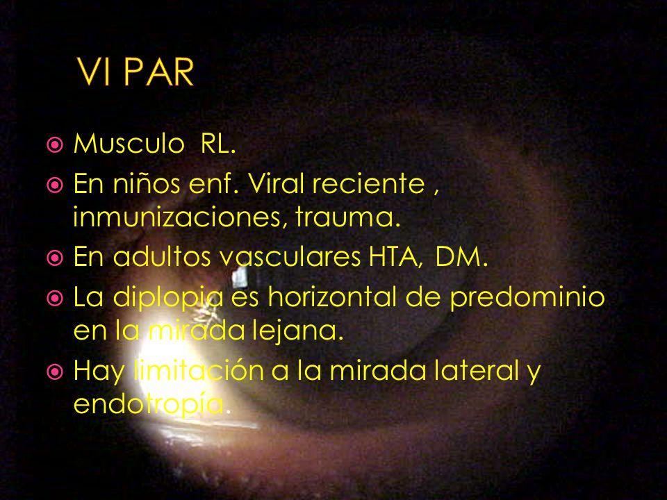 Musculo RL. En niños enf. Viral reciente, inmunizaciones, trauma. En adultos vasculares HTA, DM. La diplopia es horizontal de predominio en la mirada
