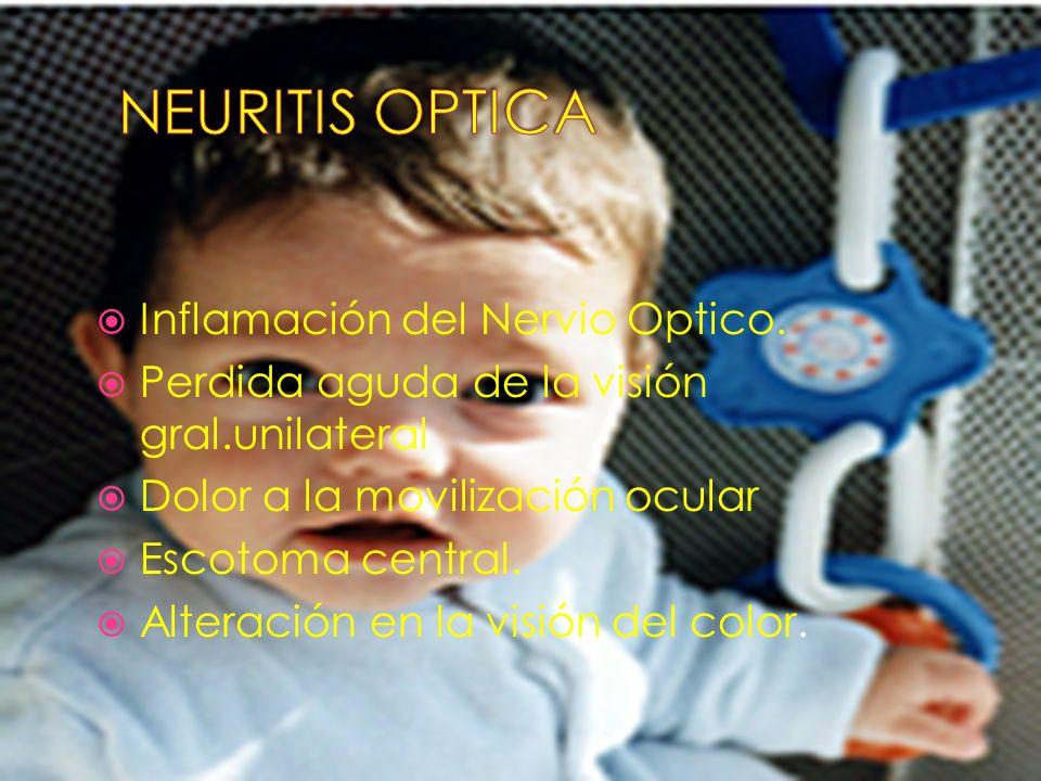Inflamación del Nervio Optico. Perdida aguda de la visión gral.unilateral Dolor a la movilización ocular Escotoma central. Alteración en la visión del