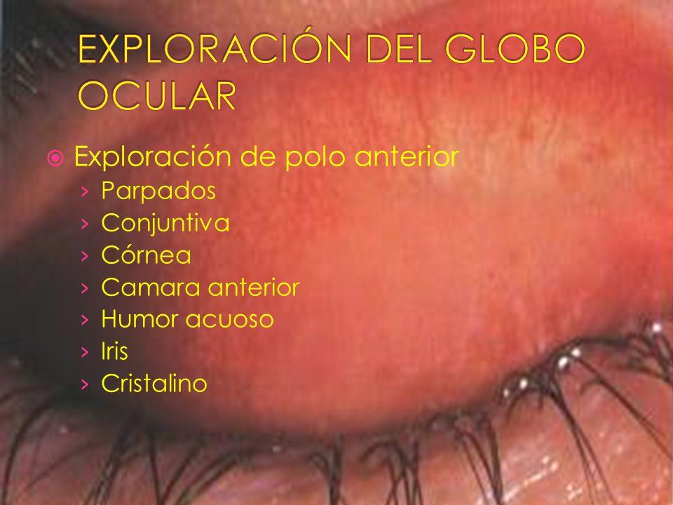 Exploración de polo anterior Parpados Conjuntiva Córnea Camara anterior Humor acuoso Iris Cristalino