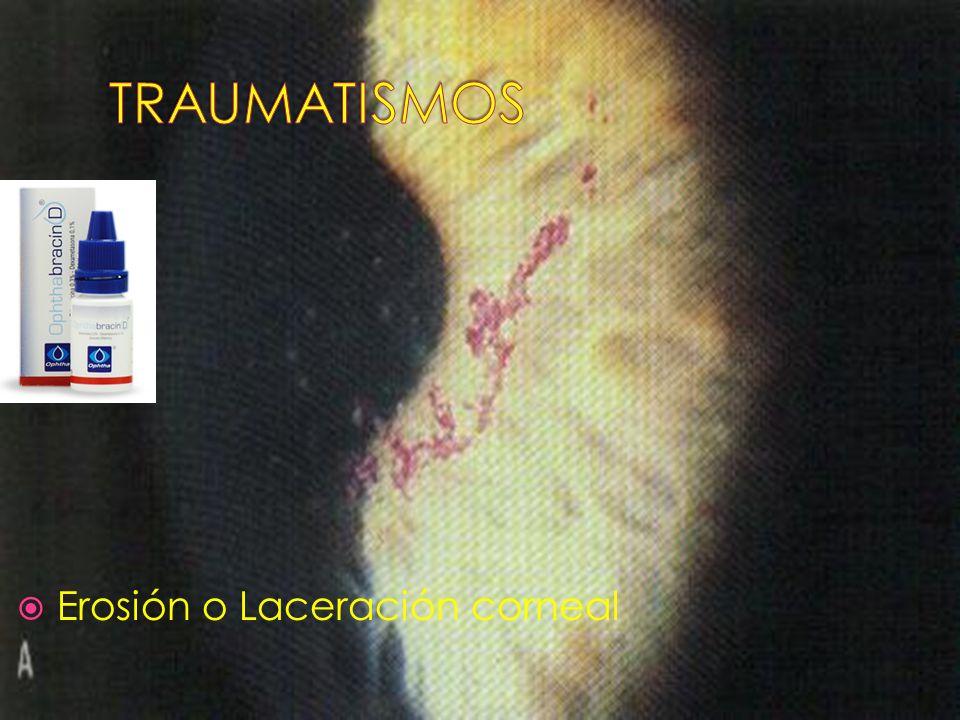 Erosión o Laceración corneal