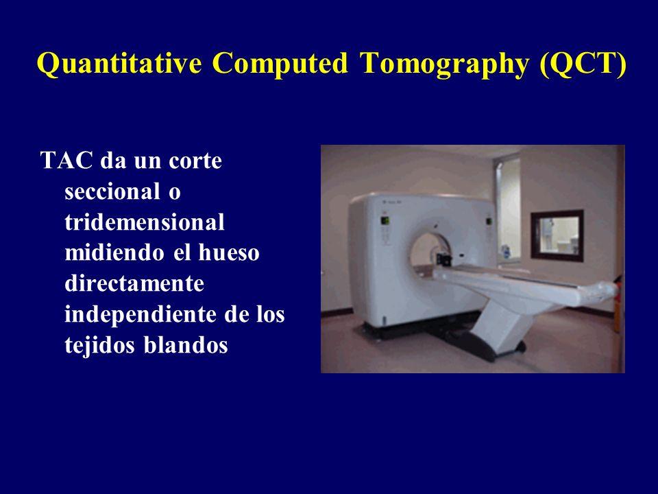 Quantitative Computed Tomography (QCT) TAC da un corte seccional o tridemensional midiendo el hueso directamente independiente de los tejidos blandos