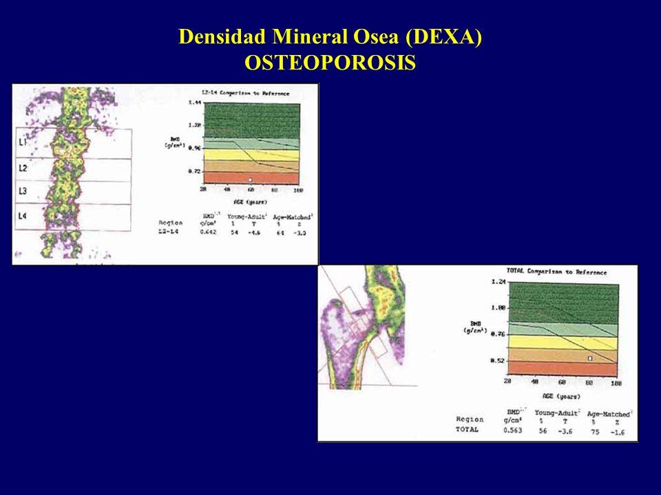 Densidad Mineral Osea (DEXA) OSTEOPOROSIS
