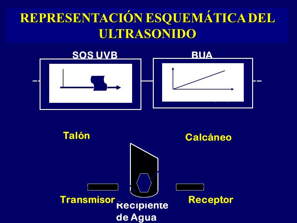 Recipiente de Agua SOS UVBBUA TransmisorReceptor Absorción (dB) Frecuencia(Mhz) Tiempo(Mt/seg.) Talón Calcáneo REPRESENTACIÓN ESQUEMÁTICA DEL ULTRASONIDO