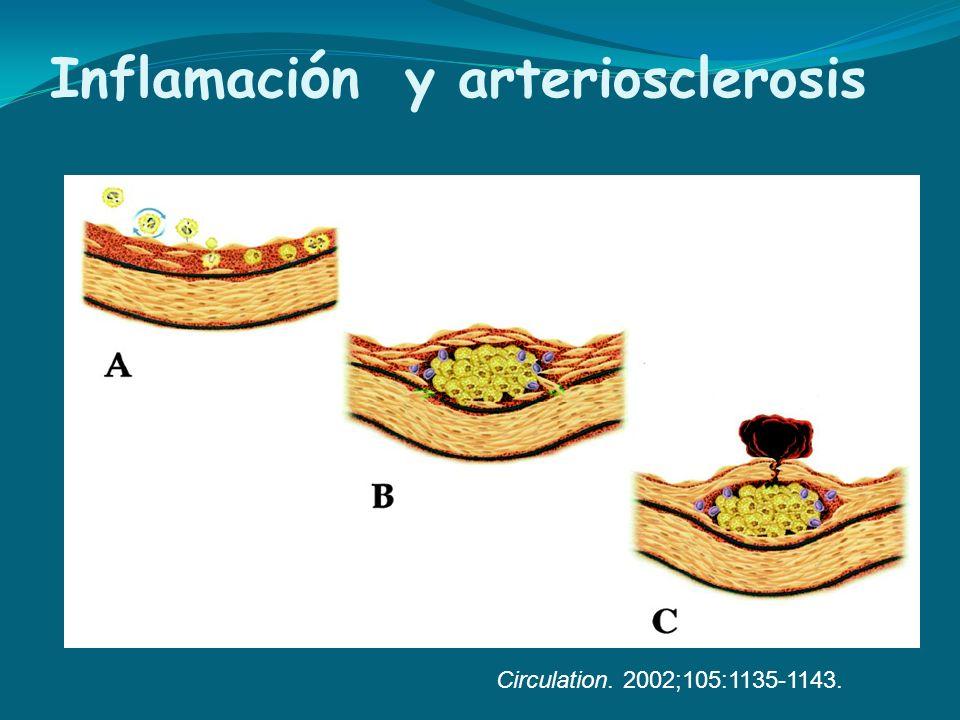 Circulation. 2002;105:1135-1143. Inflamaci ó n y arteriosclerosis