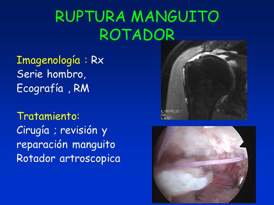 RUPTURA MANGUITO ROTADOR Imagenología : Rx Serie hombro, Ecografía, RM Tratamiento: Cirugía ; revisión y reparación manguito Rotador artroscopica