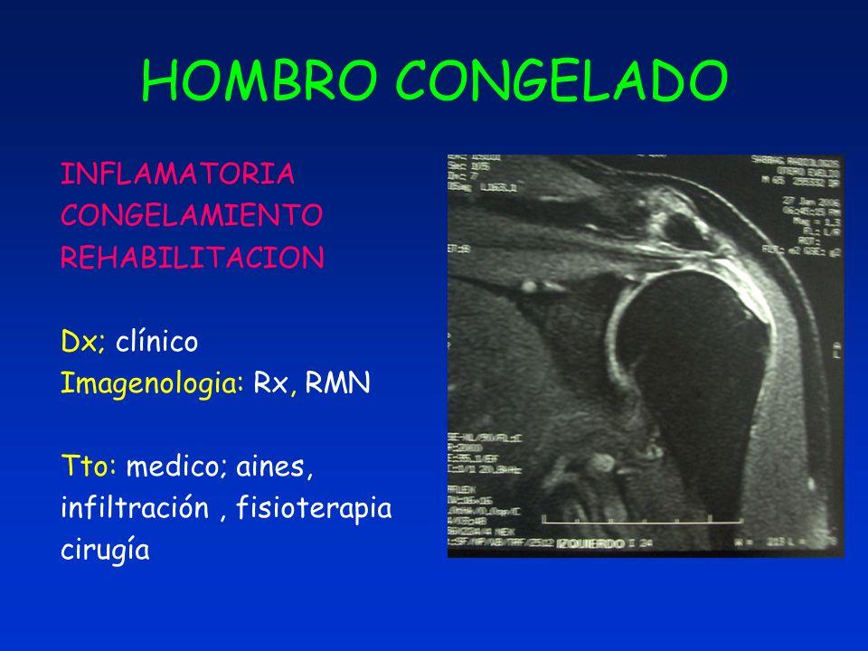 HOMBRO CONGELADO INFLAMATORIA CONGELAMIENTO REHABILITACION Dx; clínico Imagenologia: Rx, RMN Tto: medico; aines, infiltración, fisioterapia cirugía