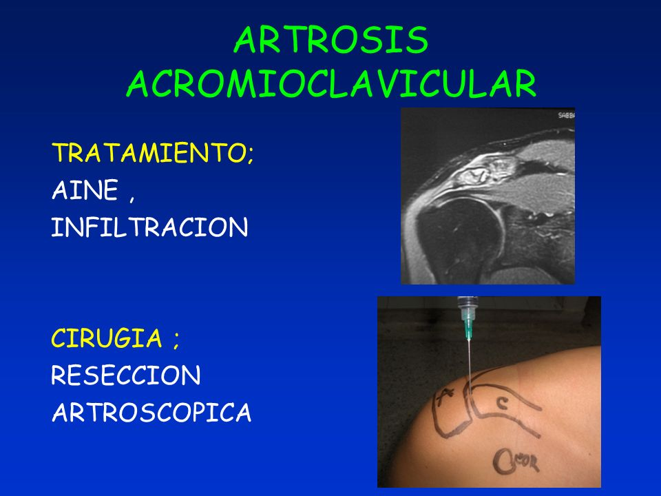 ARTROSIS ACROMIOCLAVICULAR TRATAMIENTO; AINE, INFILTRACION CIRUGIA ; RESECCION ARTROSCOPICA