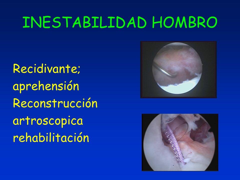 INESTABILIDAD HOMBRO Recidivante; aprehensión Reconstrucción artroscopica rehabilitación