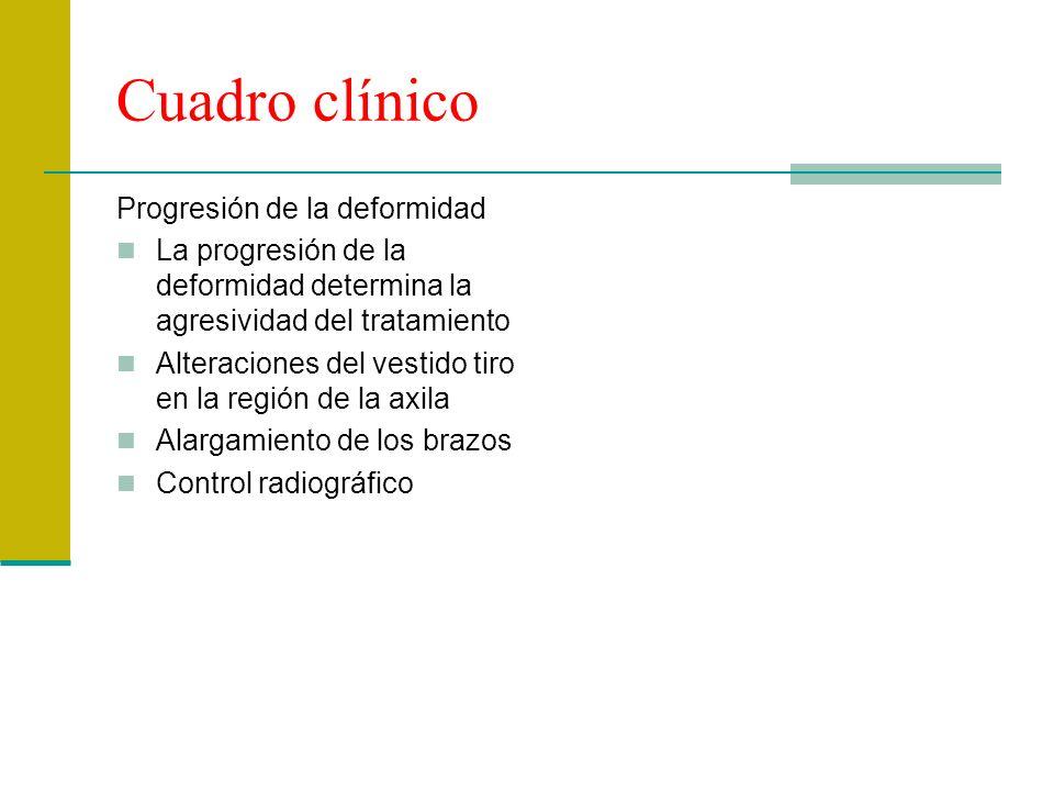 Cuadro clínico Progresión de la deformidad La progresión de la deformidad determina la agresividad del tratamiento Alteraciones del vestido tiro en la