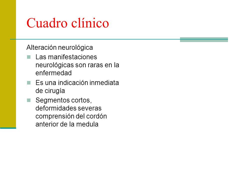 Cuadro clínico Alteración neurológica Las manifestaciones neurológicas son raras en la enfermedad Es una indicación inmediata de cirugía Segmentos cor
