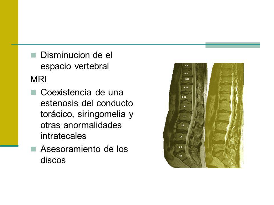 Disminucion de el espacio vertebral MRI Coexistencia de una estenosis del conducto torácico, siringomelia y otras anormalidades intratecales Asesorami