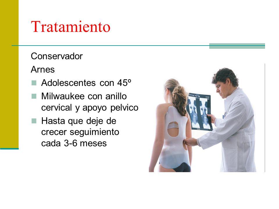 Tratamiento Conservador Arnes Adolescentes con 45º Milwaukee con anillo cervical y apoyo pelvico Hasta que deje de crecer seguimiento cada 3-6 meses