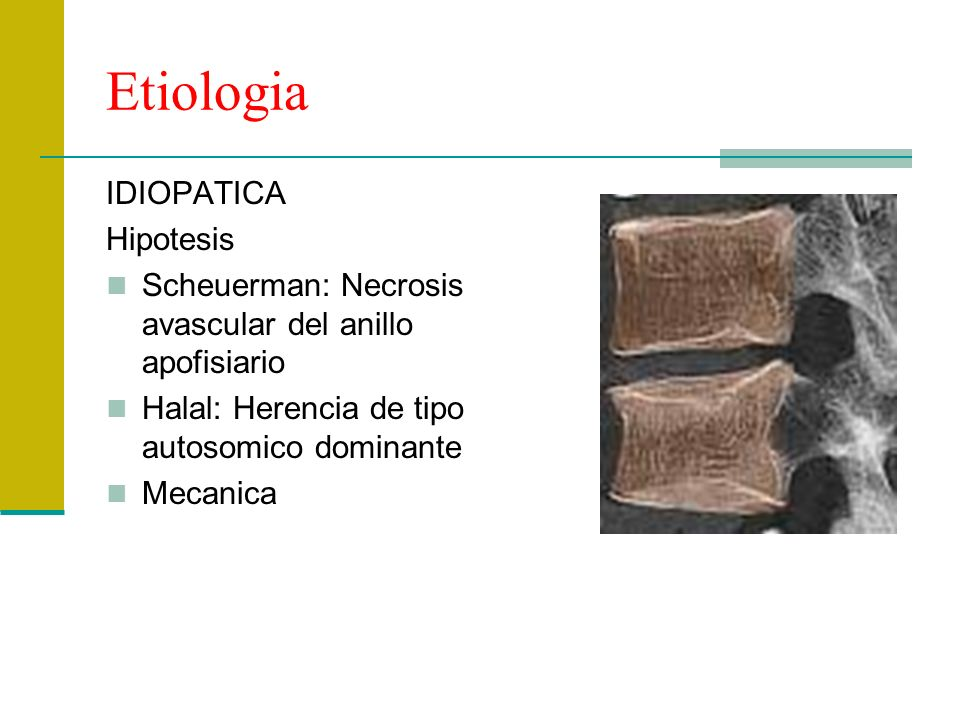 Etiologia IDIOPATICA Hipotesis Scheuerman: Necrosis avascular del anillo apofisiario Halal: Herencia de tipo autosomico dominante Mecanica