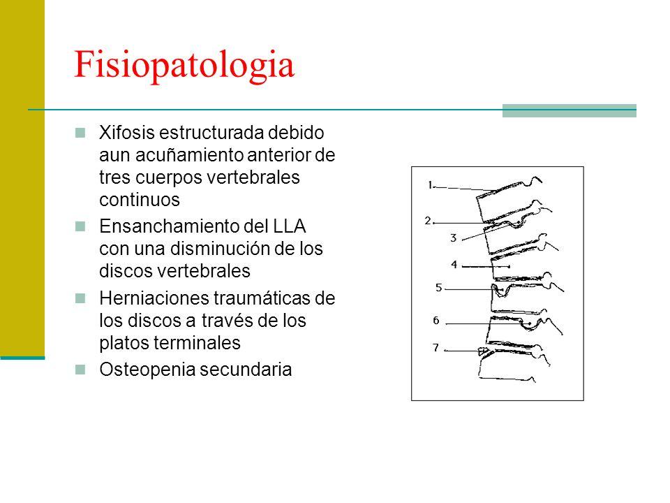 Fisiopatologia Xifosis estructurada debido aun acuñamiento anterior de tres cuerpos vertebrales continuos Ensanchamiento del LLA con una disminución d