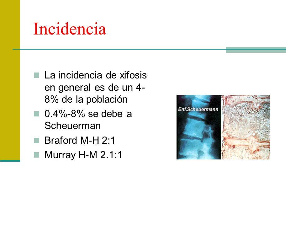 Incidencia La incidencia de xifosis en general es de un 4- 8% de la población 0.4%-8% se debe a Scheuerman Braford M-H 2:1 Murray H-M 2.1:1