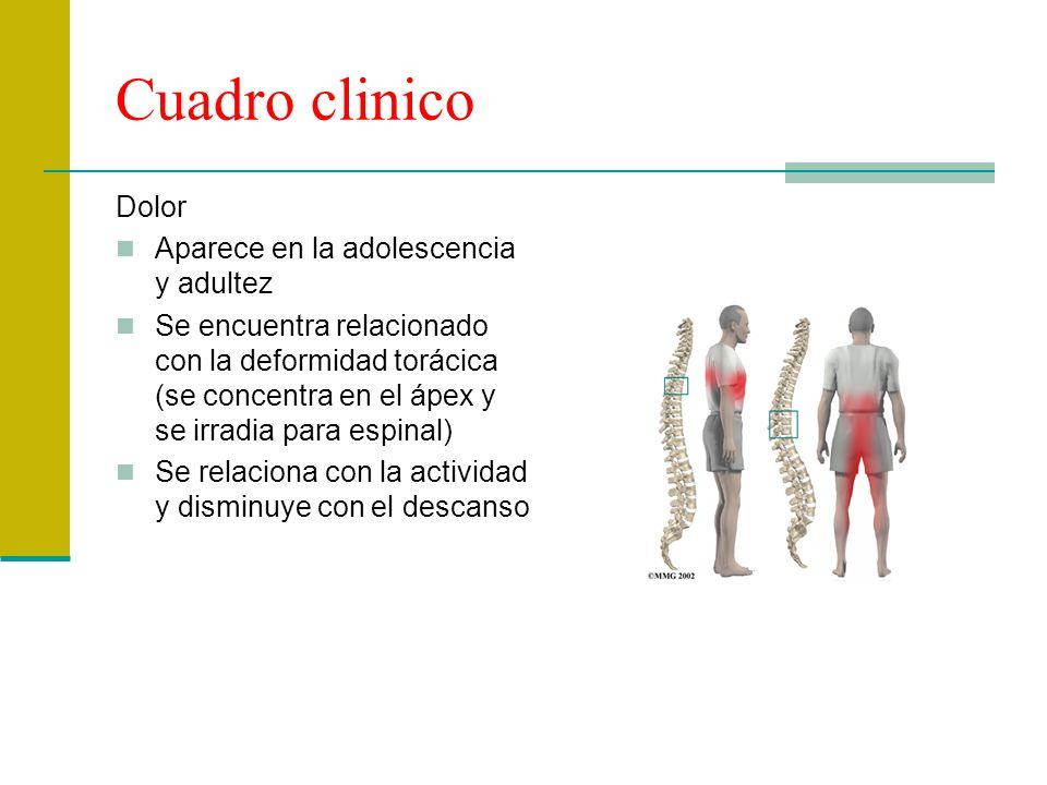 Cuadro clinico Dolor Aparece en la adolescencia y adultez Se encuentra relacionado con la deformidad torácica (se concentra en el ápex y se irradia pa