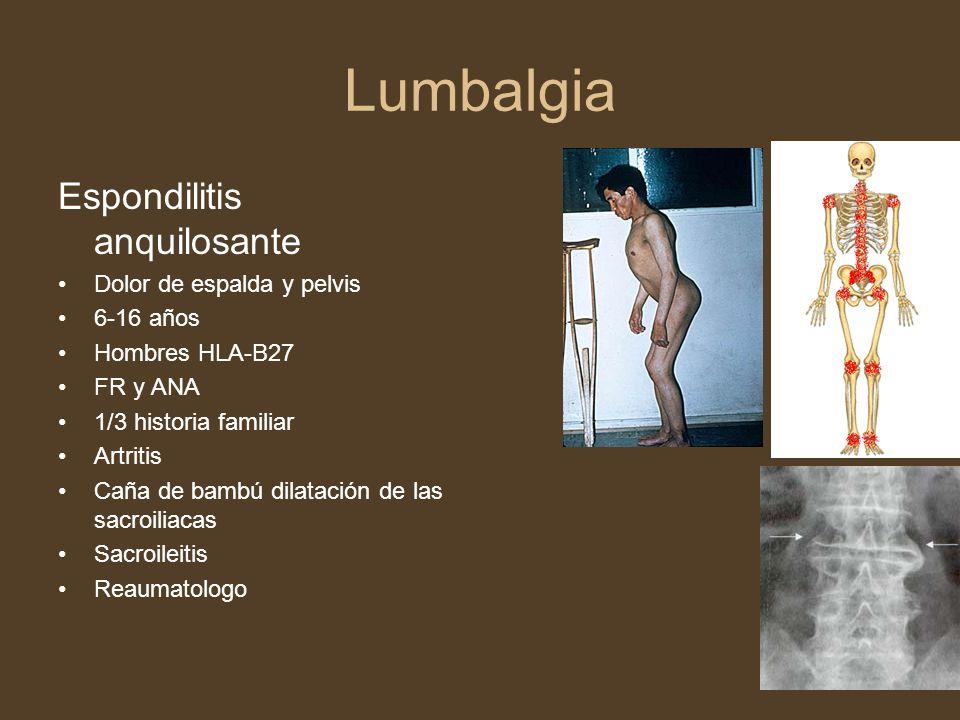 Lumbalgia Espondilitis anquilosante Dolor de espalda y pelvis 6-16 años Hombres HLA-B27 FR y ANA 1/3 historia familiar Artritis Caña de bambú dilataci