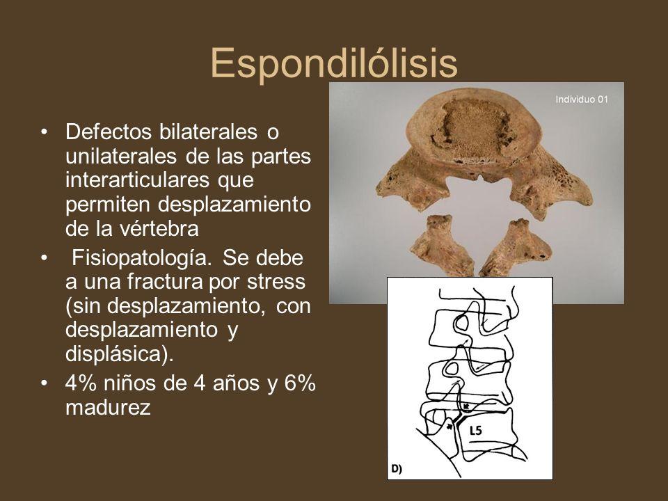 Espondilólisis Defectos bilaterales o unilaterales de las partes interarticulares que permiten desplazamiento de la vértebra Fisiopatología. Se debe a