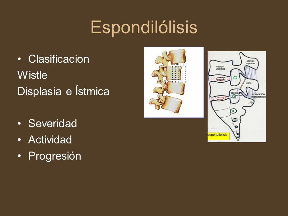 Espondilólisis Clasificacion Wistle Displasia e Ístmica Severidad Actividad Progresión