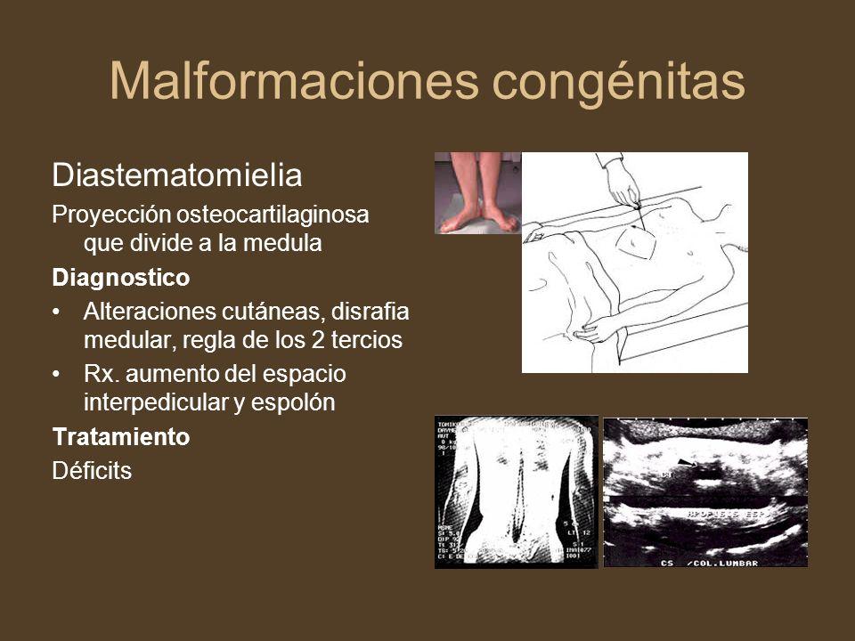 Malformaciones congénitas Diastematomielia Proyección osteocartilaginosa que divide a la medula Diagnostico Alteraciones cutáneas, disrafia medular, r