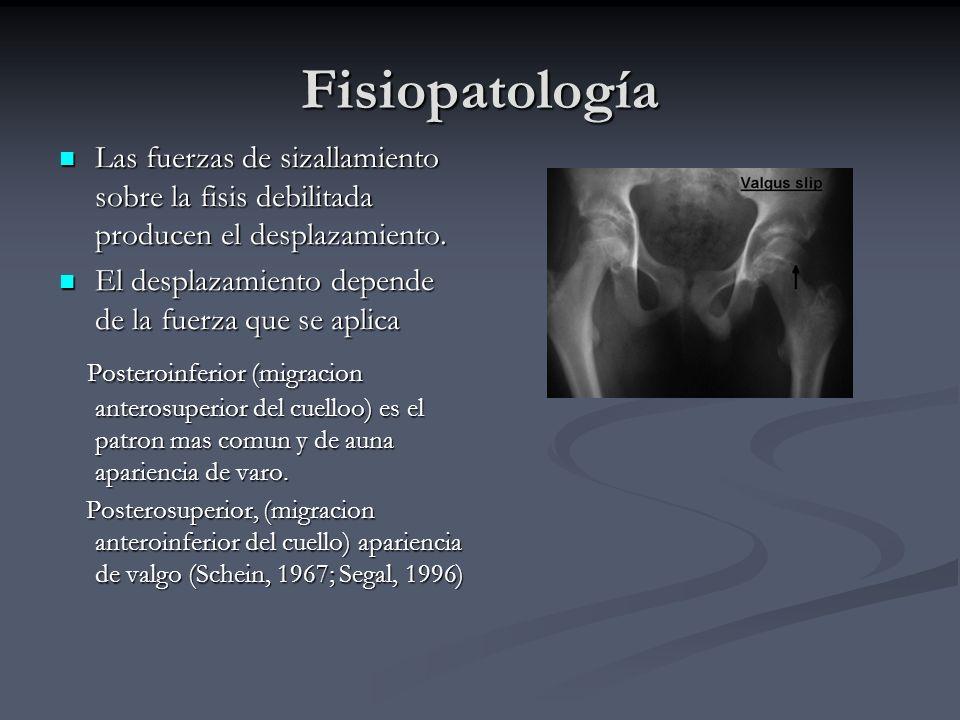 Fisiopatología Las fuerzas de sizallamiento sobre la fisis debilitada producen el desplazamiento. Las fuerzas de sizallamiento sobre la fisis debilita
