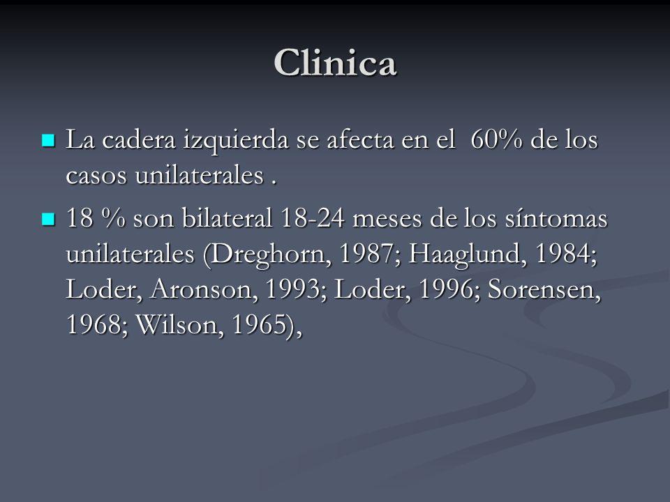 Clinica La cadera izquierda se afecta en el 60% de los casos unilaterales. La cadera izquierda se afecta en el 60% de los casos unilaterales. 18 % son