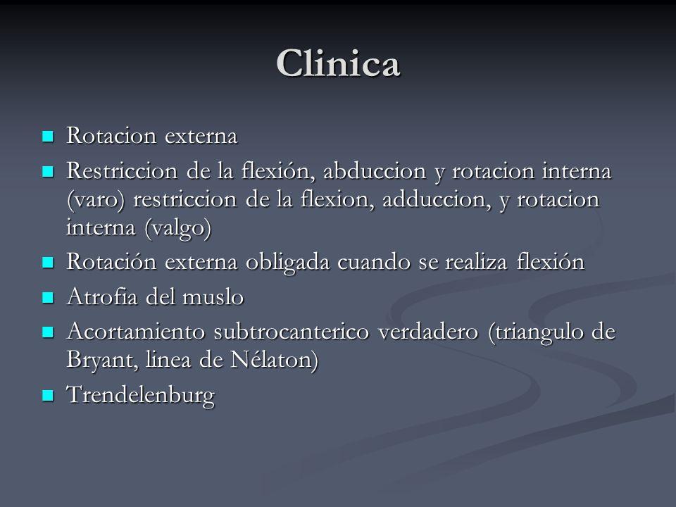 Clinica Rotacion externa Rotacion externa Restriccion de la flexión, abduccion y rotacion interna (varo) restriccion de la flexion, adduccion, y rotac