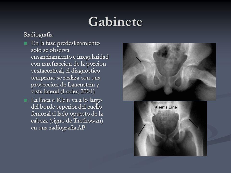 Gabinete Radiografia En la fase predeslizamiento solo se observa ensanchamiento e irregularidad con rarefraccion de la porcion yuxtacortical, el diagn