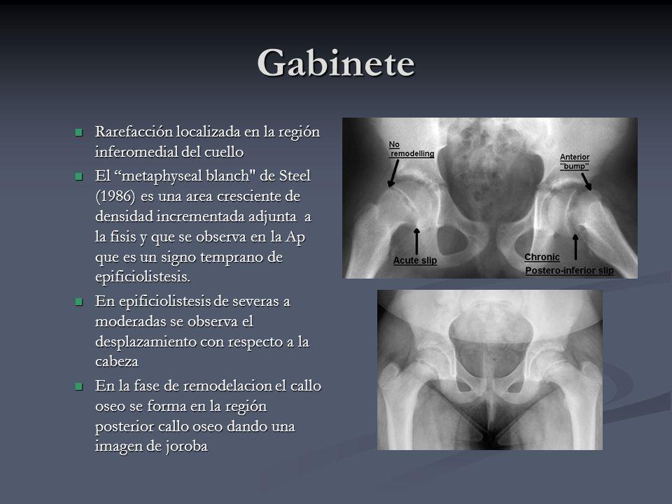 Gabinete Rarefacción localizada en la región inferomedial del cuello Rarefacción localizada en la región inferomedial del cuello El metaphyseal blanch